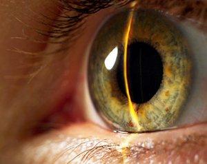 Что собой представляет сканирование радужной оболочки глаза?